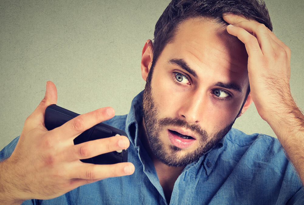 Does Balding Negatively Affect Work Life